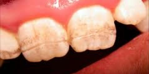 dental enamel and gluten intolerance